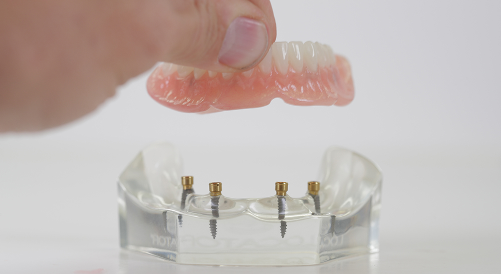 image of dentures attaching to to affordable dental implants