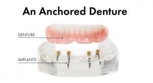 dental implant retained anchored denture