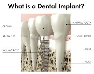 What is a Dental Implant image