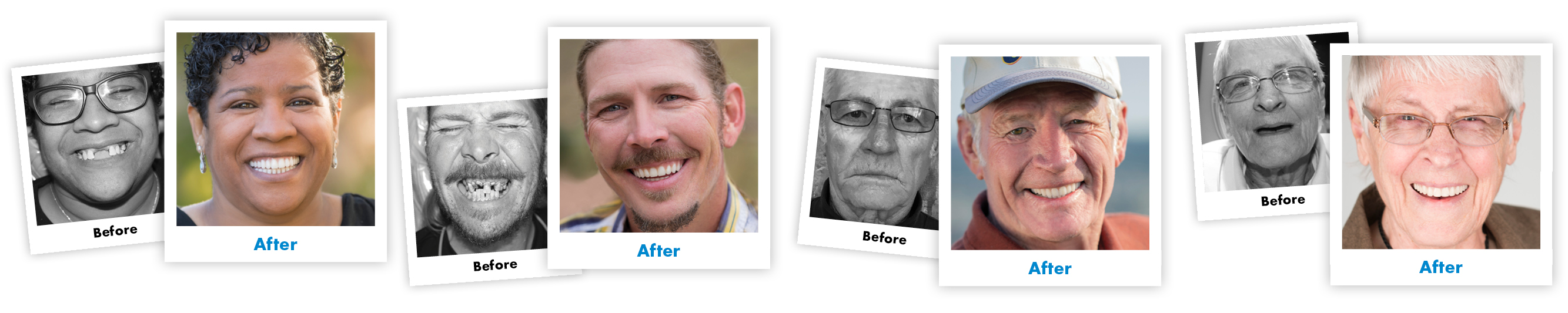 Colorado And Company Smile Makeover Renew Anchored Dentures