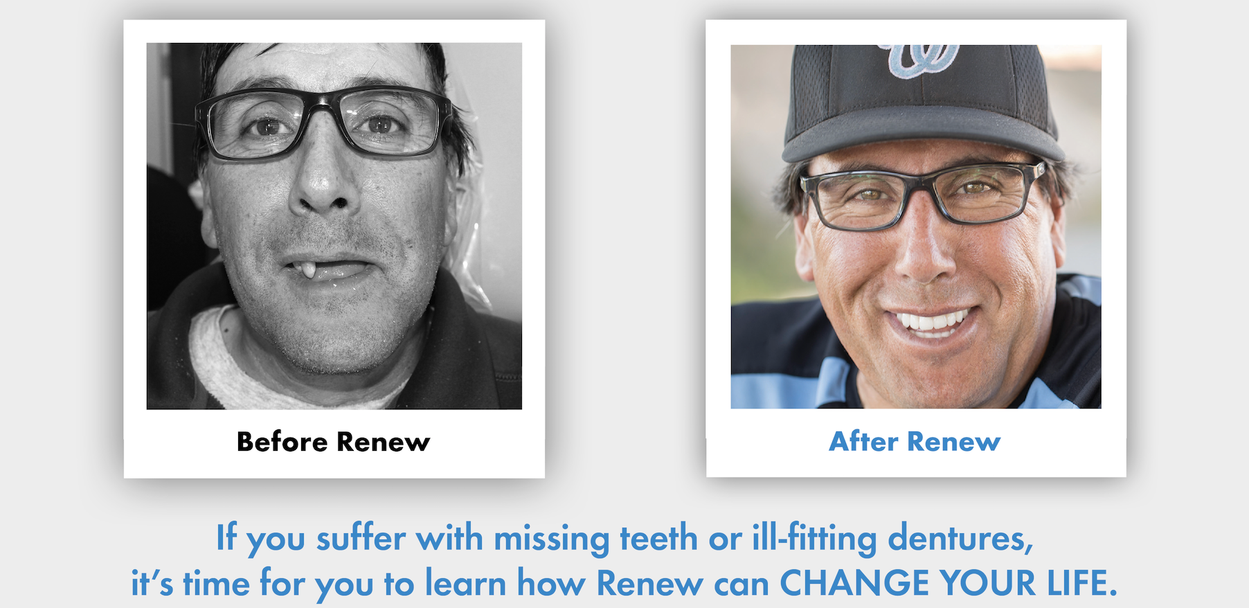 snap-denture-dental-implant-renew-anchored-dentures