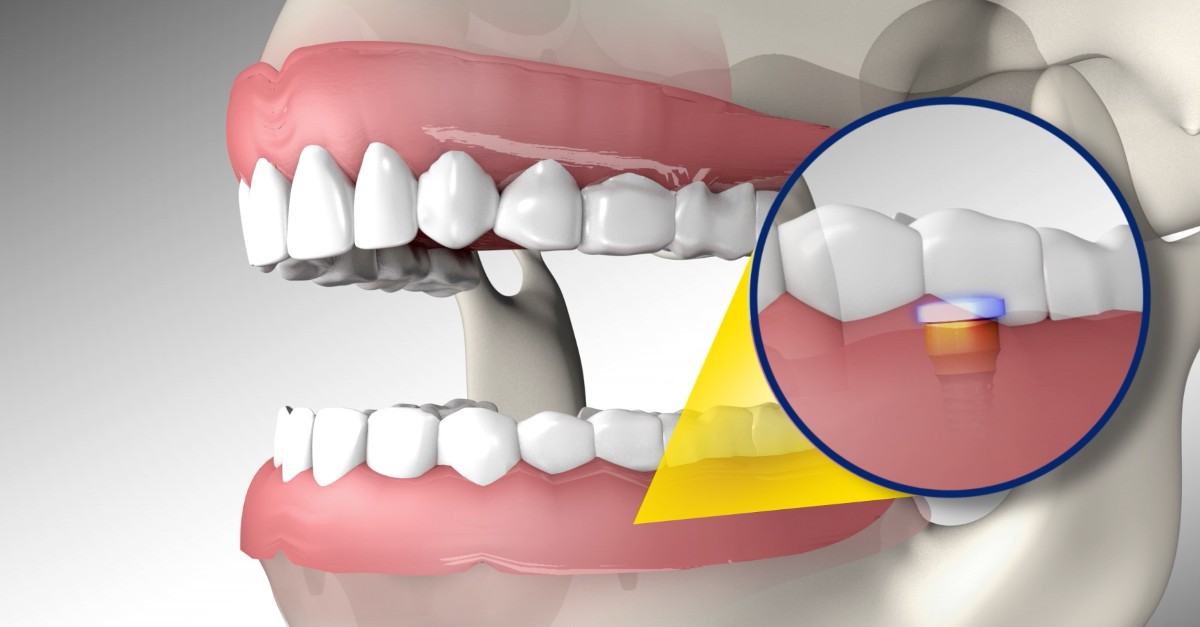 Affordable Dentures Anchored By Implants Renew